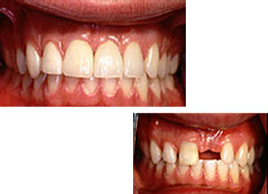 Before and after new implant crown and veneers
