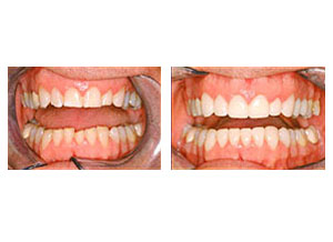 Before and after worn dentition